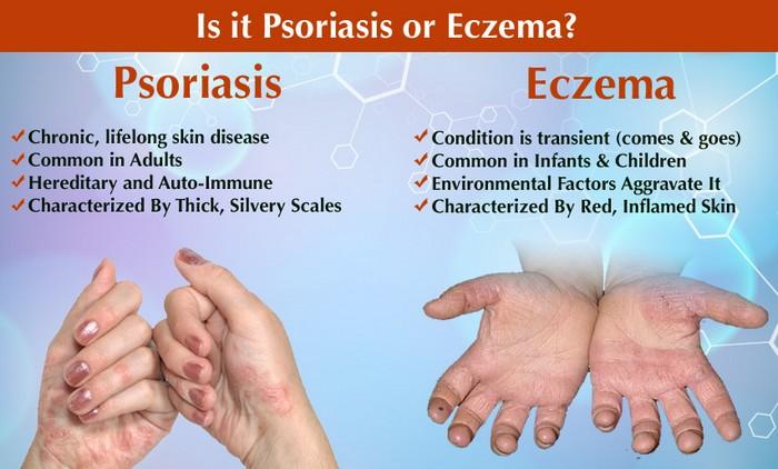 psoriasis-arthritis augenprobleme.jpg