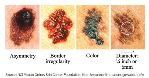 Anal skin cancer galleries 563
