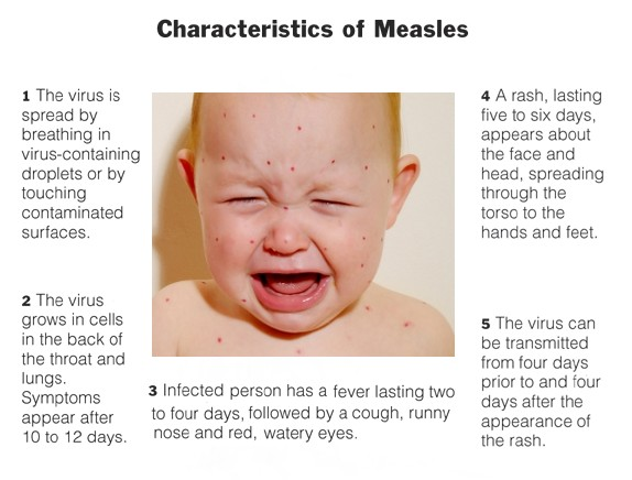 Measles rash early stages